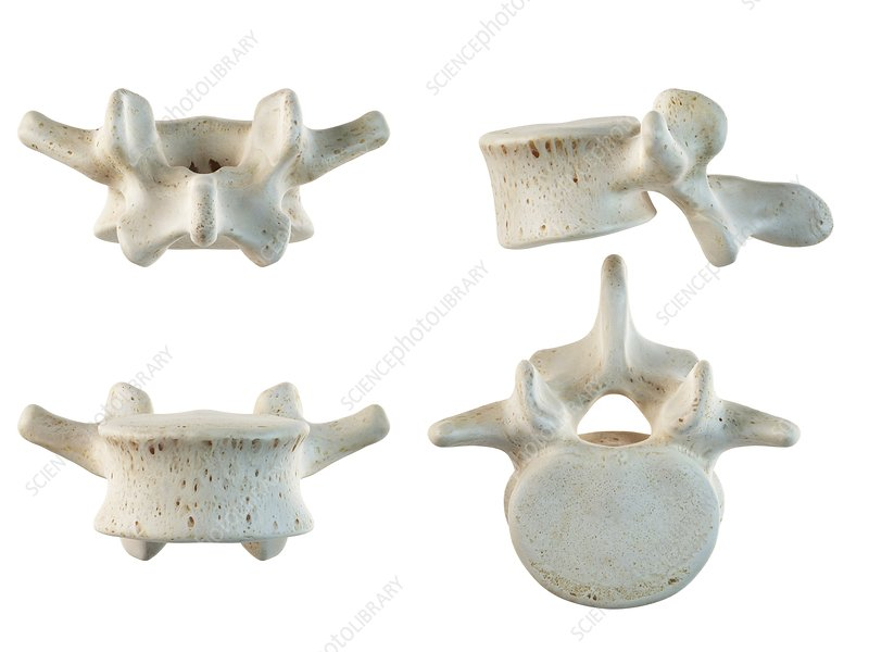 Human lumbar vertebrae, artwork