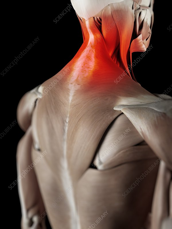 Human neck muscles, artwork