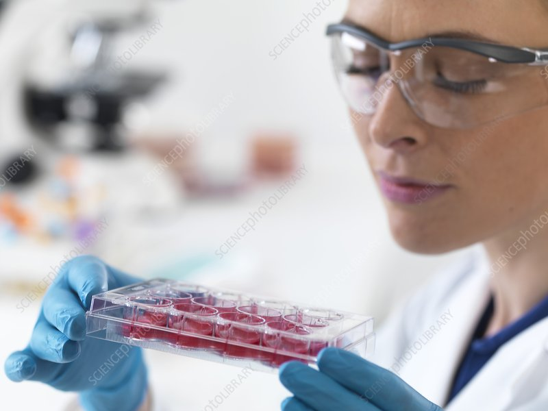 Scientist holding stem cells