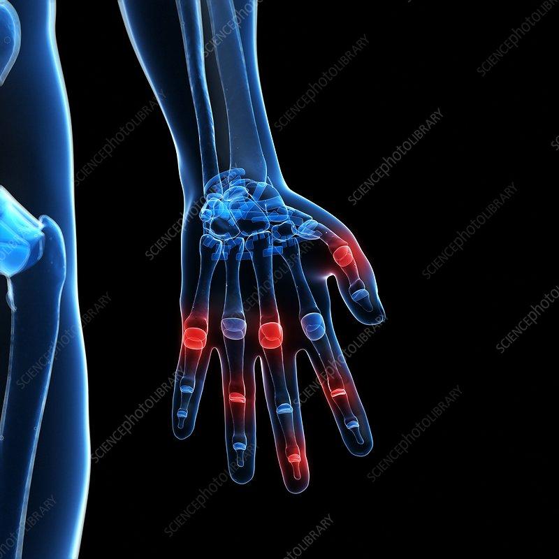 Human finger joints, artwork