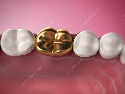 Gold filling in tooth, artwork