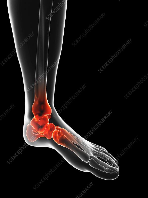 Human ankle, artwork