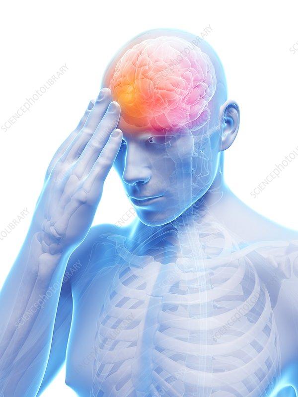 Headache, artwork