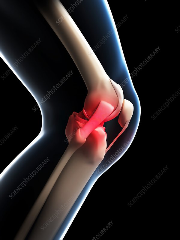 Human knee pain, artwork