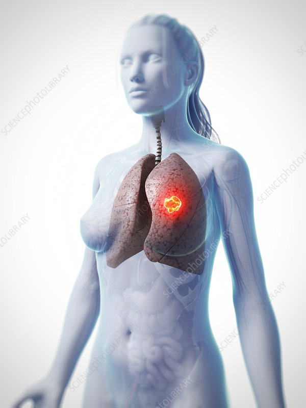 Female lung cancer, artwork