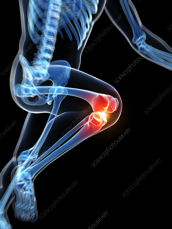 Runner's knee joint, artwork