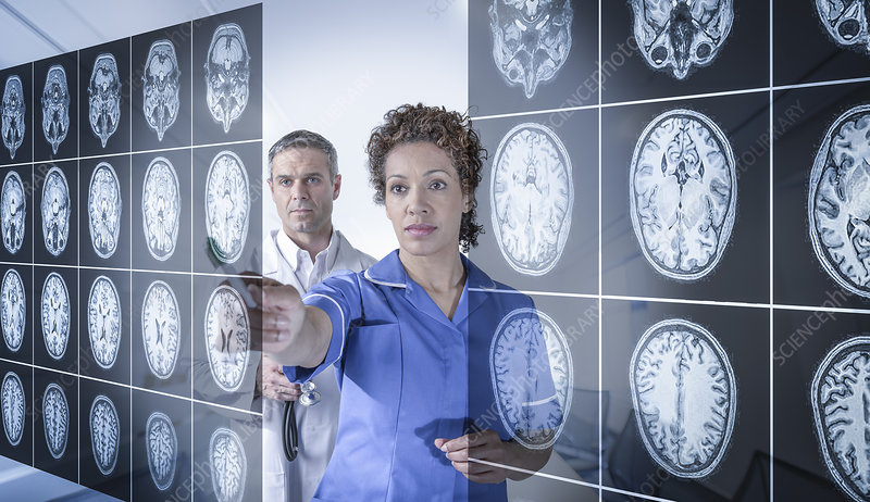 Doctor and nurse with MRI brain scans