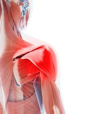 Human shoulder muscle pain, artwork