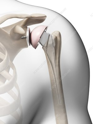 Human shoulder replacement, artwork
