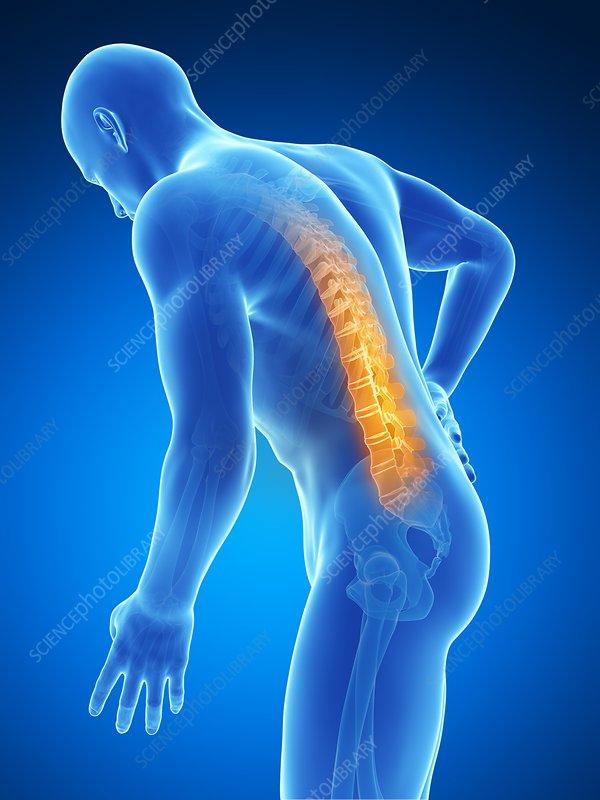 Human back pain, artwork