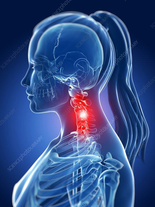 Human neck pain, illustration