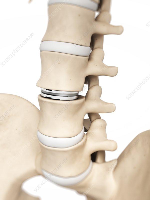 Human lumber spine, illustration