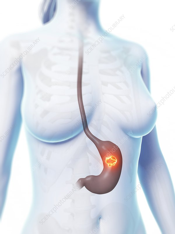 Human stomach ulcer, illustration