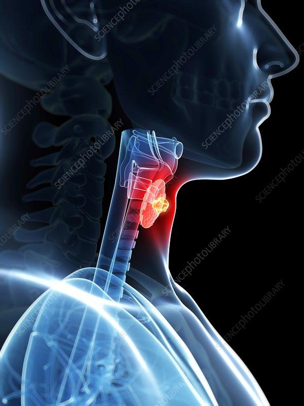 Human larynx cancer, illustration