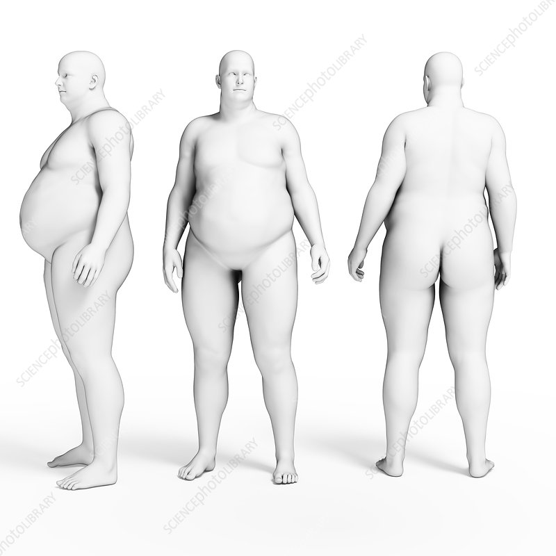 Overweight body, illustration