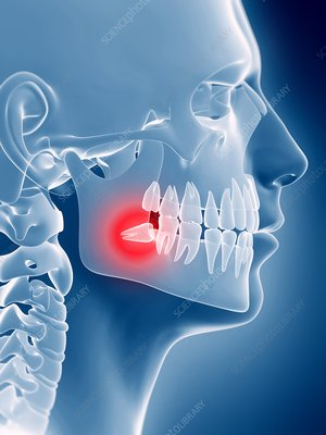 Impacted wisdom tooth, illustration