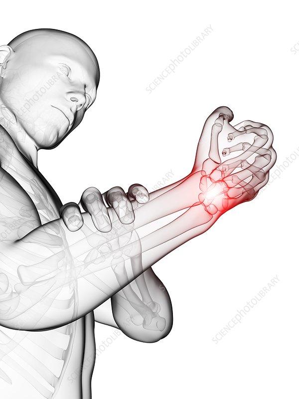 Human wrist pain, illustration