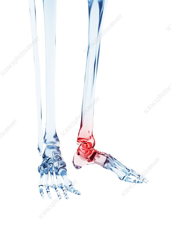 Human ankle pain, illustration