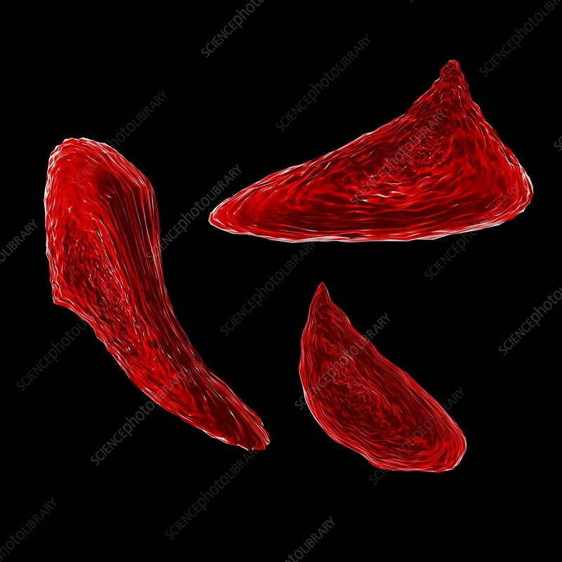 Sickle cell anaemia, illustration
