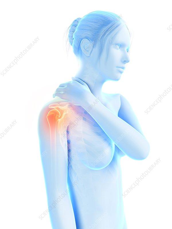 Human shoulder pain, illustration