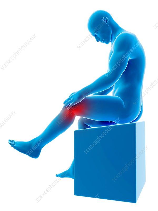 Human knee pain, illustration