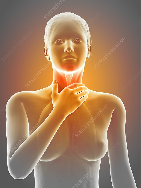 Inflammation of the larynx, illustration