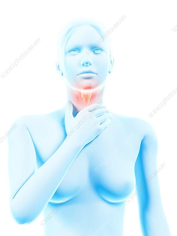 Inflammation of the larynx, illustration
