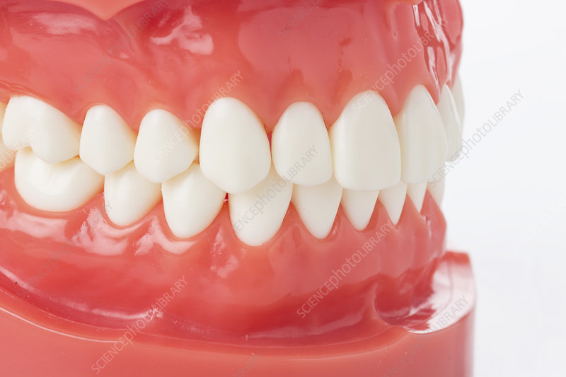 False teeth and gums