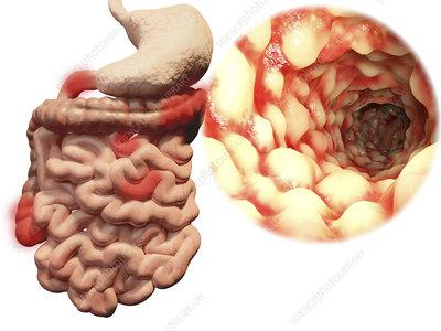 Crohn's disease, illustration