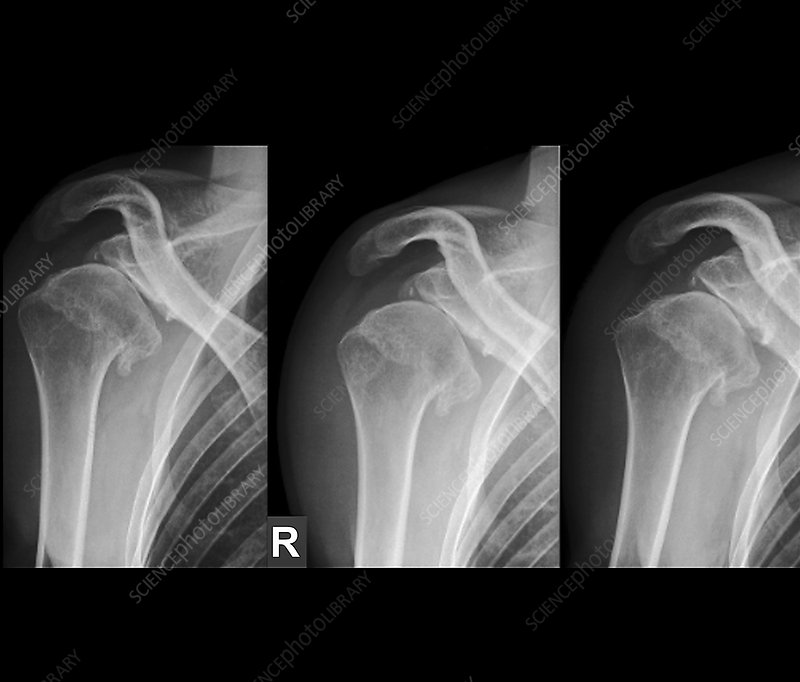 Injured shoulder, X-rays