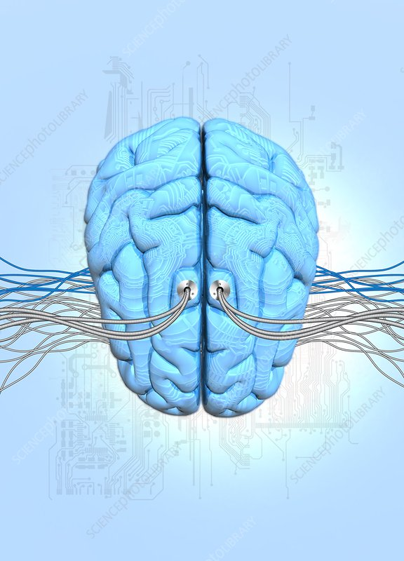Neuromorphic engineering, illustration