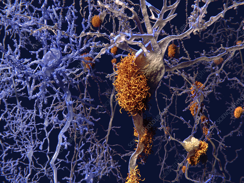 Brain nerve cells affected by alzheimers