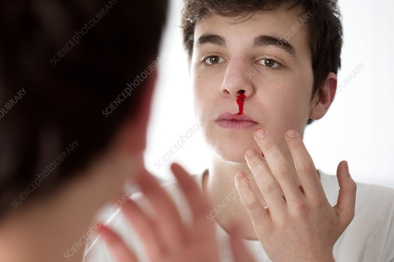 Young man with nose bleed