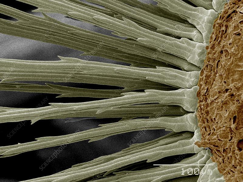 Base of Dandelion seeds SEM