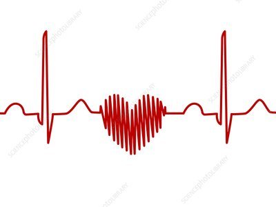 Heart-shaped ECG trace