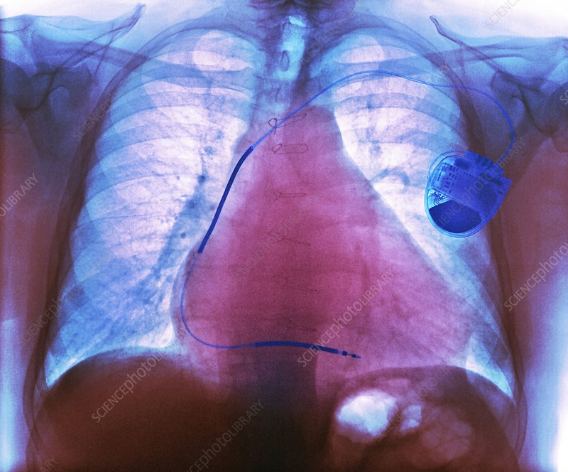 Pacemaker in heart disease, X-ray