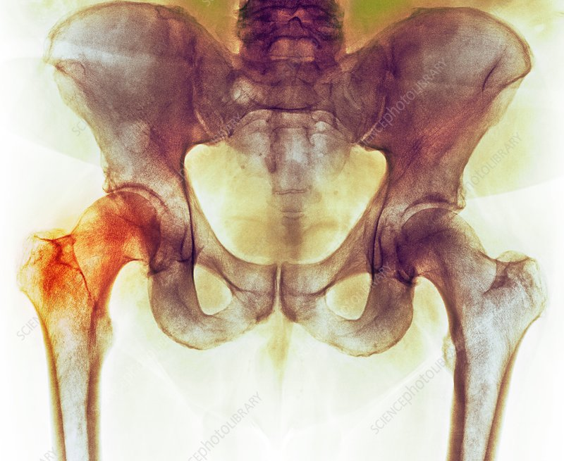 Hip before hip replacement surgery, X-ray
