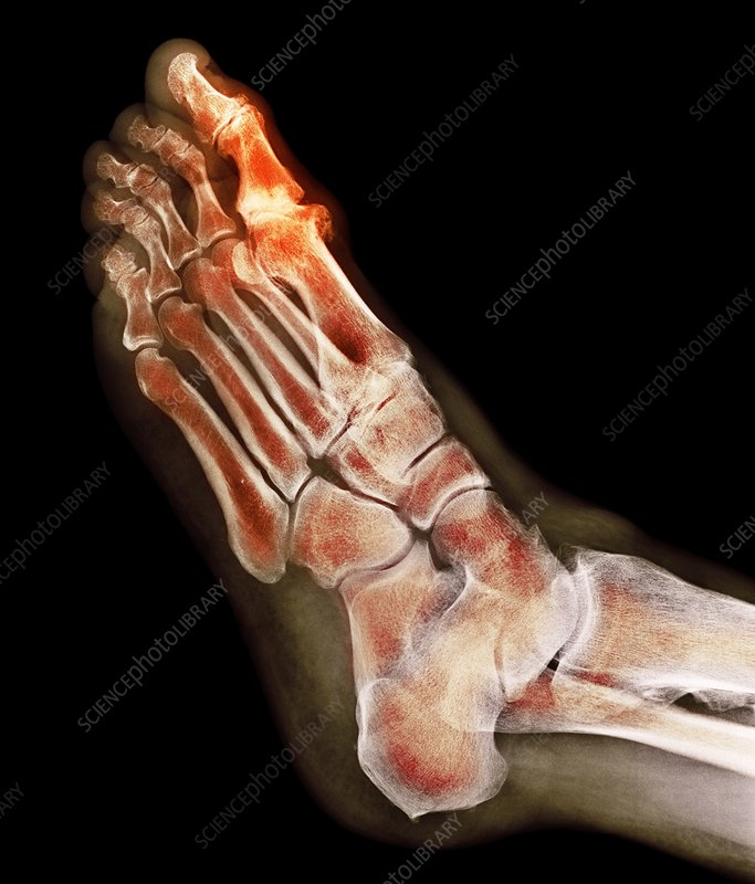Degenerative foot deformation, X-ray