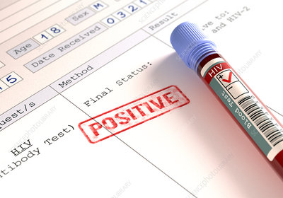 Positive HIV blood test, illustration
