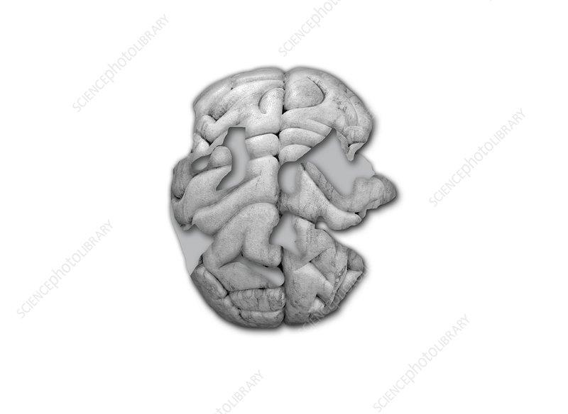 Damaged human brain
