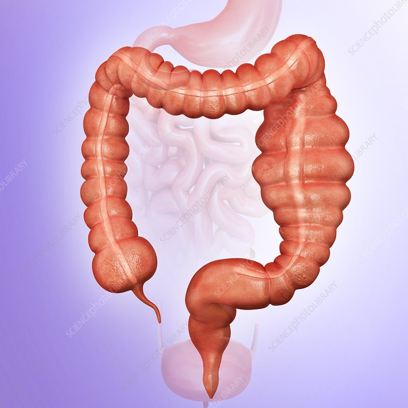 Megacolon, illustration