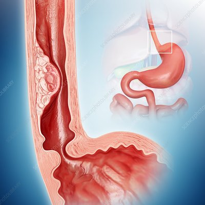 Oesophageal cancer, illustration