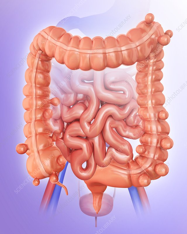 Diverticulitis, illustration