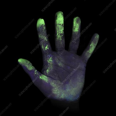 UV light showing bacteria on hand