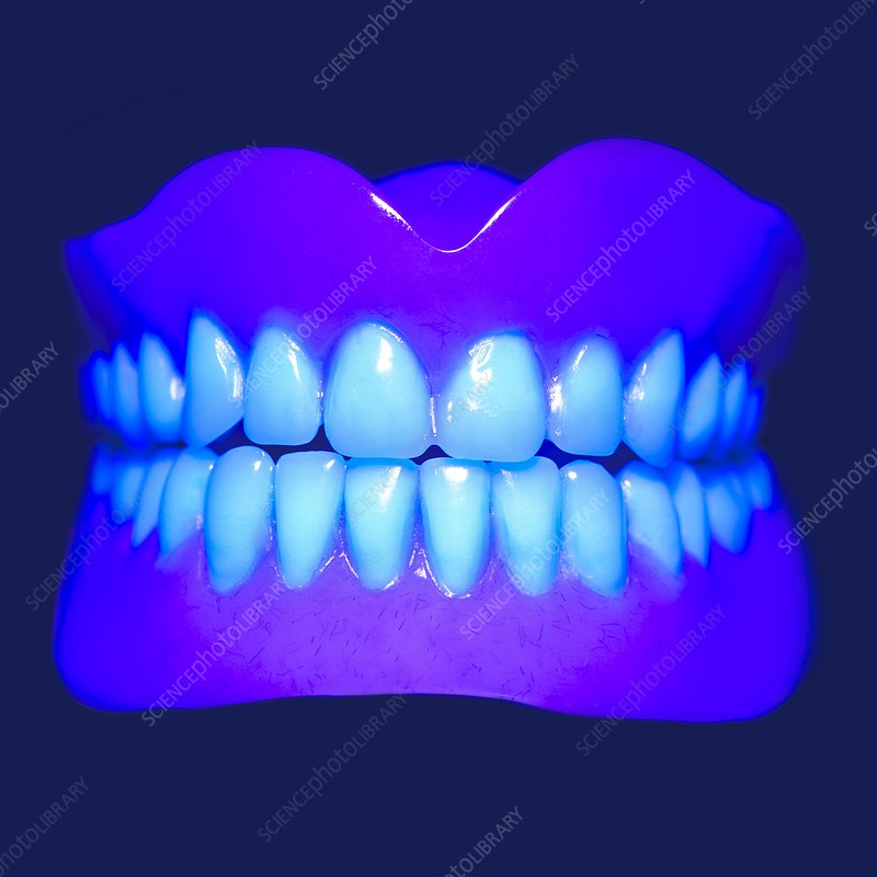 Model teeth in UV light