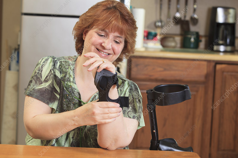 Woman with RSD adjusting her hand brace