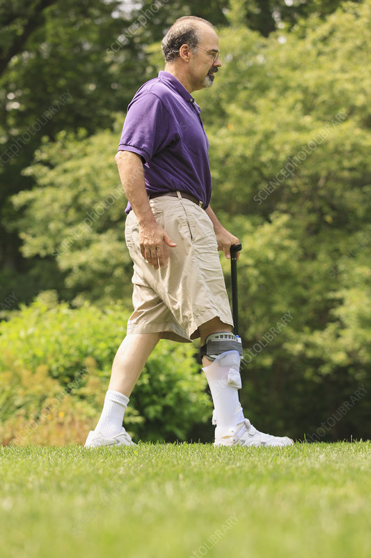 Man with ankle sprain walking with cane