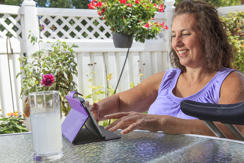 Woman with disability working on tablet
