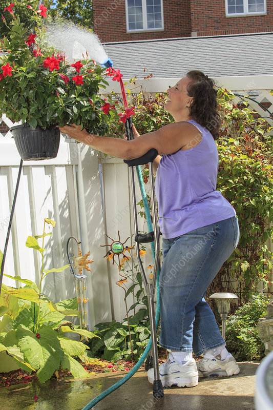 Woman with disability spraying flowers