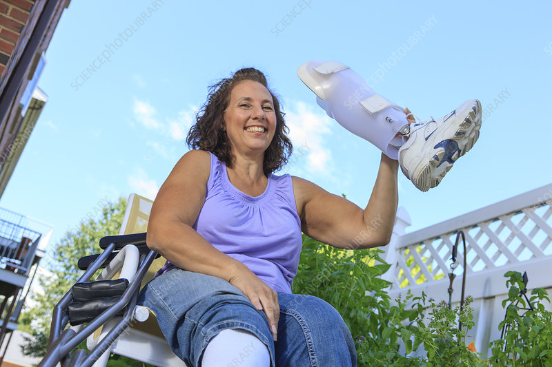 Woman showing off new leg brace